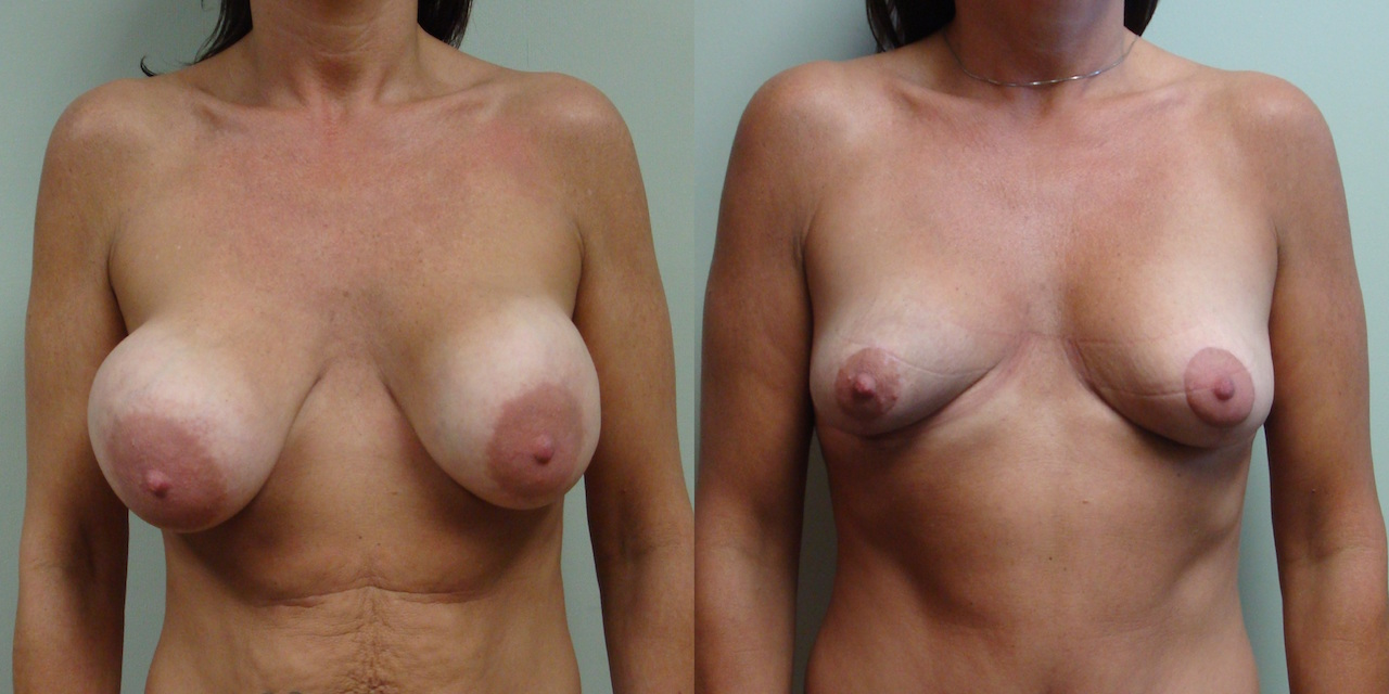 Breast Lift 10-1