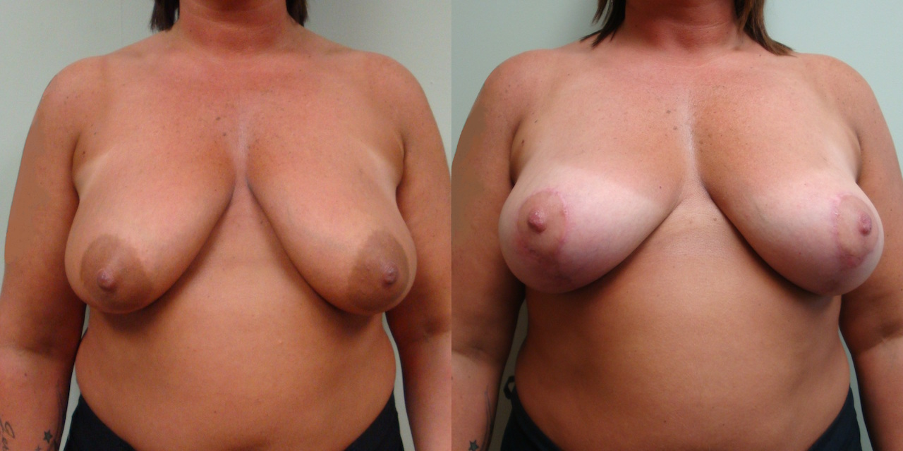 Breast Lift 20-1