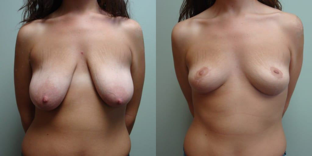 Breast Reduction 10-1
