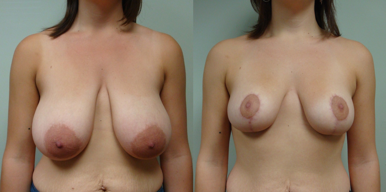 Breast Reduction 20-1