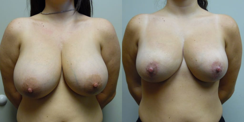 Breast Reduction 30-1