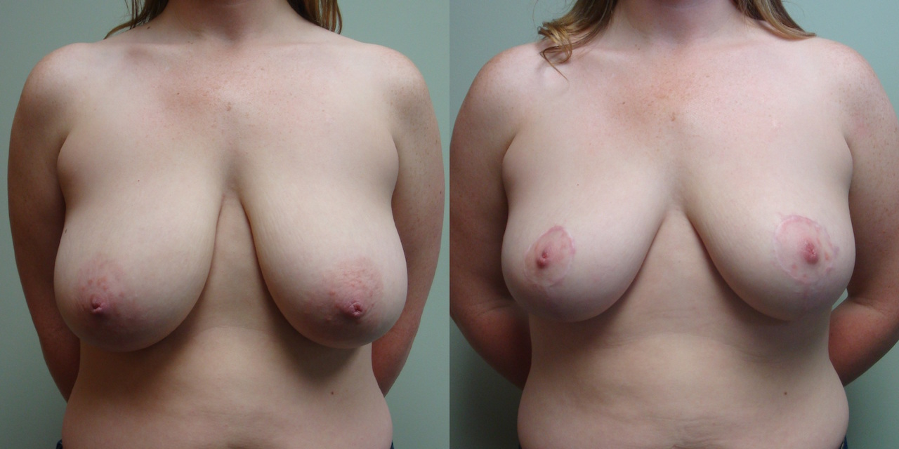 Breast Reduction 40-1