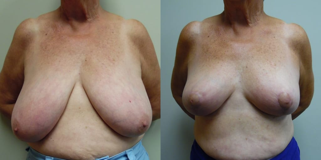 Breast Reduction 50-1