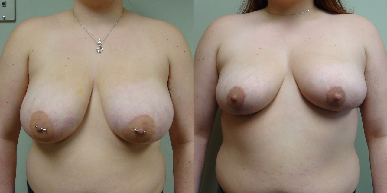 Breast Reduction 60-1