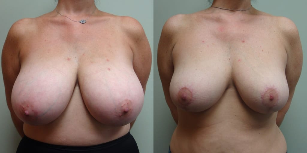 Breast Reduction 70-1