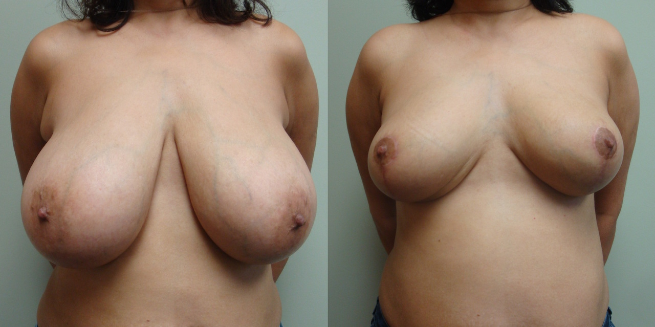Breast Reduction 80-1