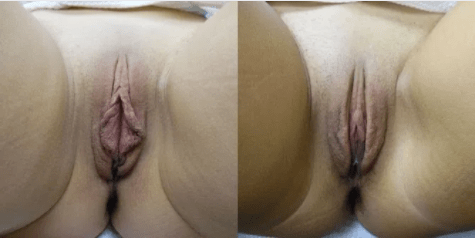 Labiaplasty Gallery