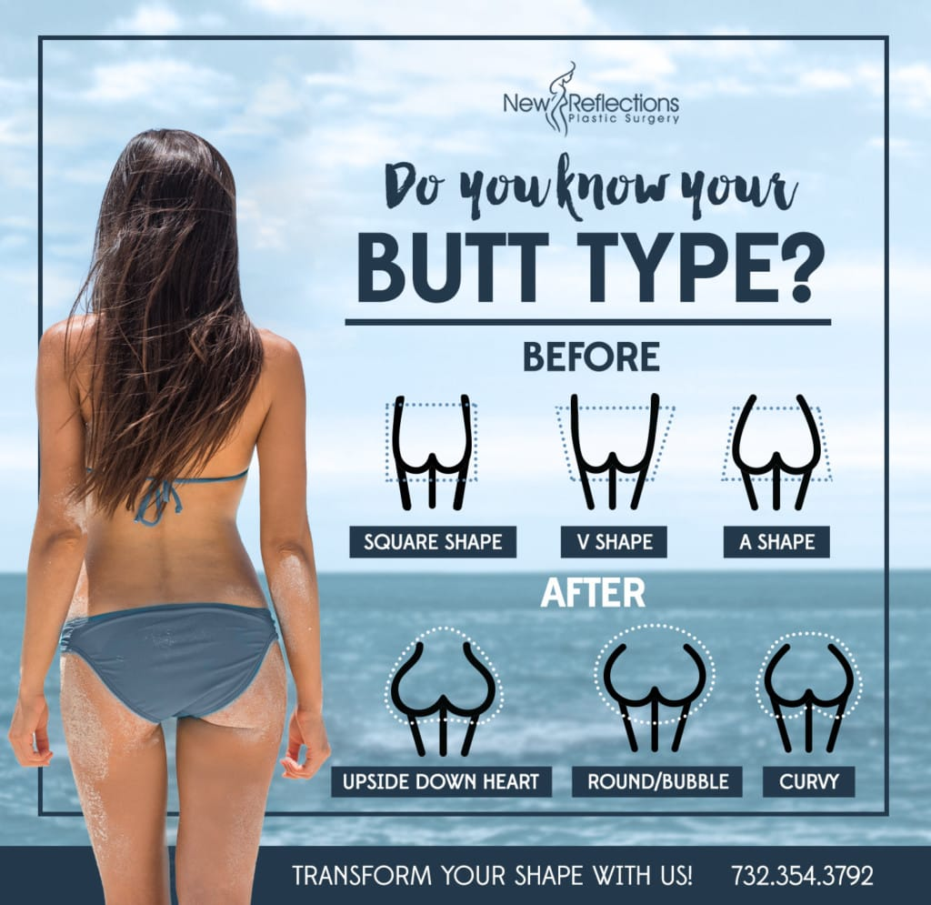 Brazilian Butt Lift Infographic