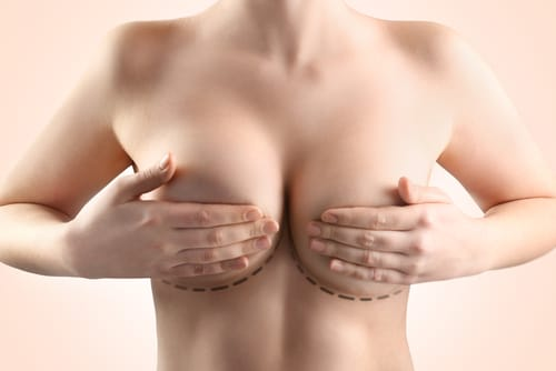 How to Have a Successful Breast Augmentation Recovery