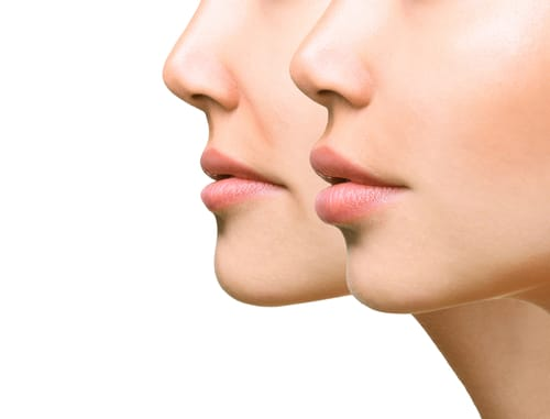 Answers to Your Questions About Lip Augmentation