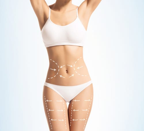Four Ways Lipo Can Help You Achieve Your Fitness Goals