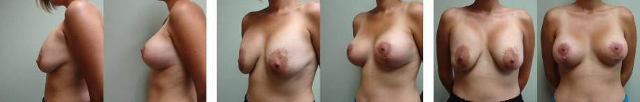 breast_lift_new_jersey
